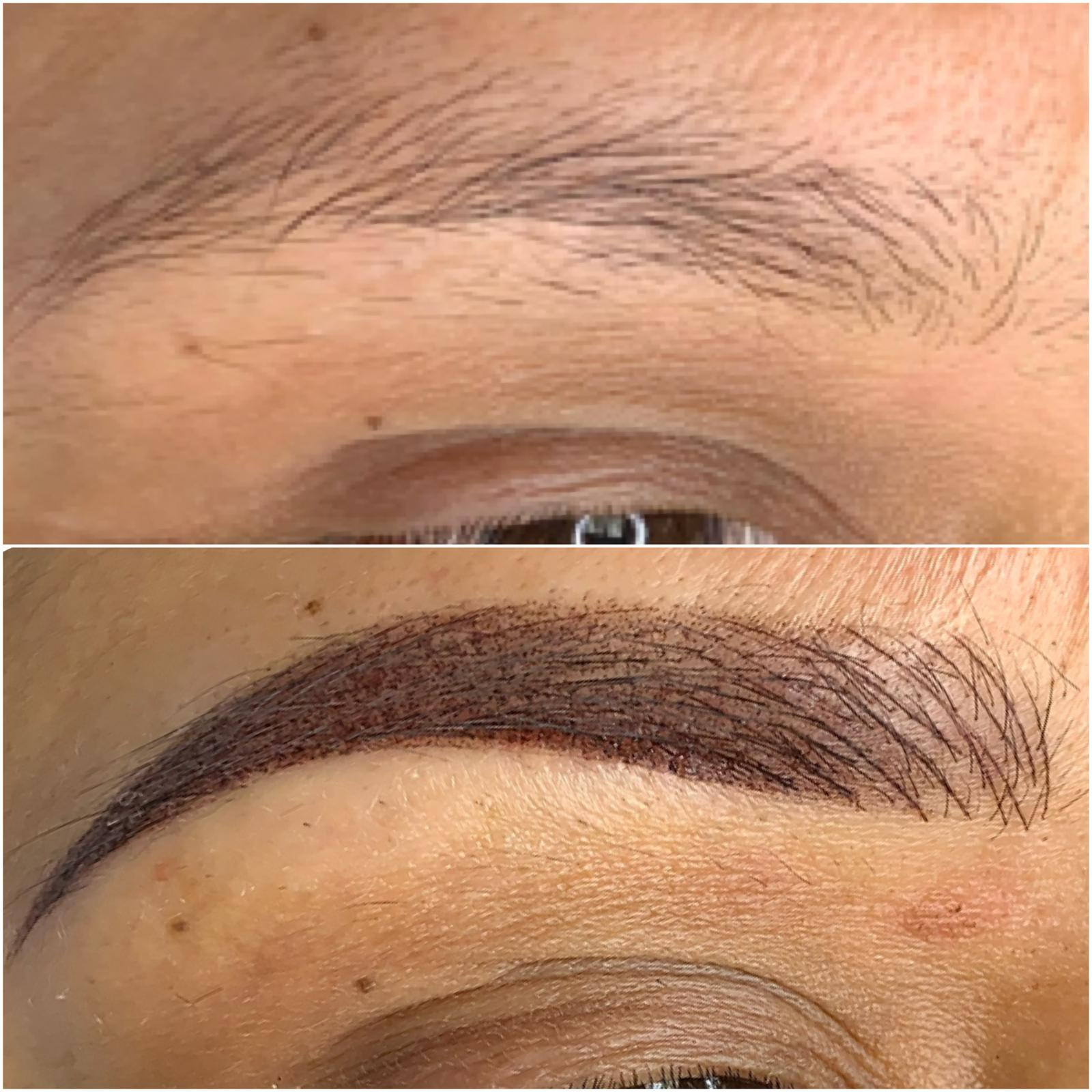 NANO NEEDLING NANO BROWS