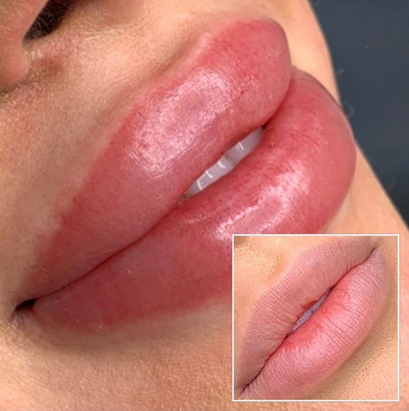 Permanent Lip Makeup Lip Blushing - Choosing your shade